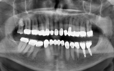 Digitalni zubni rendgen