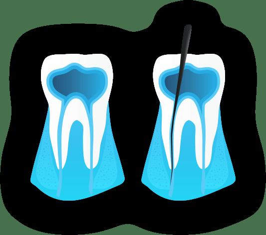 Endodonzia cura canalare - Viadent, Fiume, Croazia