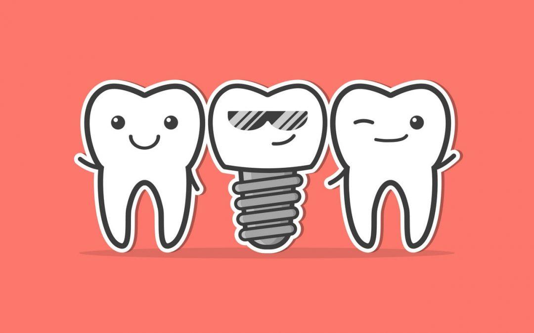 Koji zubni implantat odabrati?