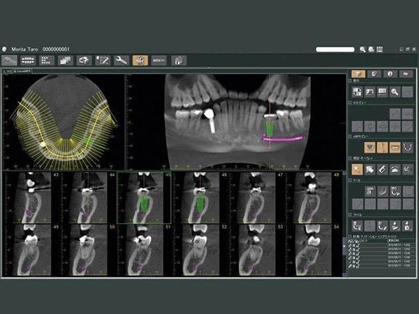 Raggi X della mascella software - Viadent, Fiume, Croazia
