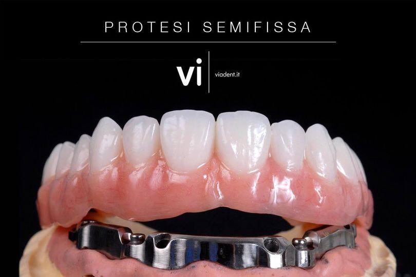 Protesi dentale semifissa - Viadent, Fiume, Croazia