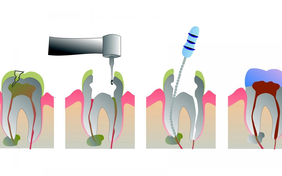 Vađenje živca iz zuba (endodoncija)
