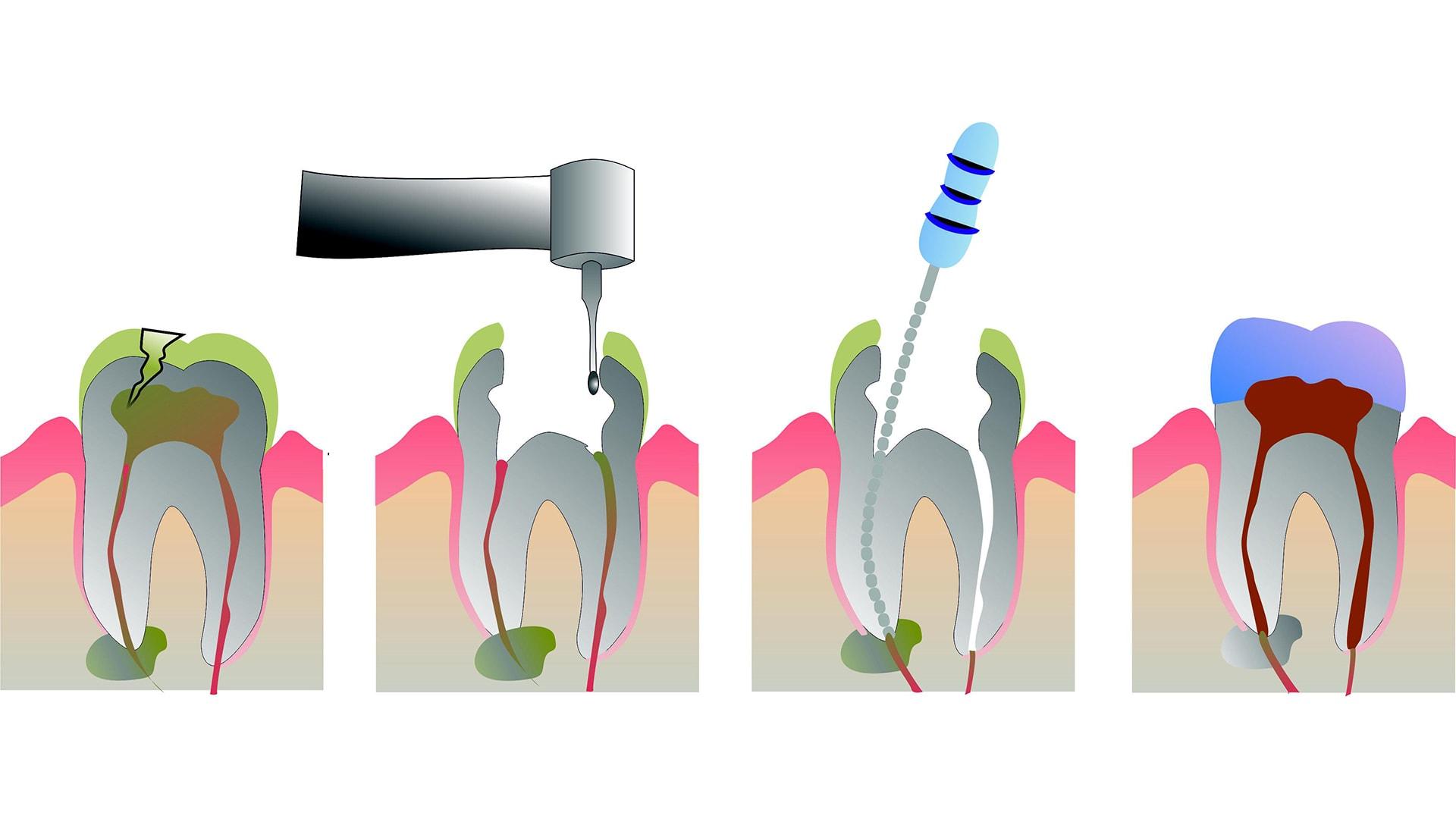 endodoncija vadjenje živca - Viadent, Rijeka